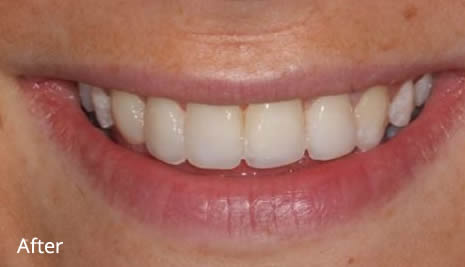 After Veneers treatment
